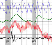 Polygraph for governments